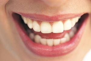Home-remedies-for-bright-white-teeth