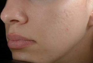after-acne-scars-birmingham